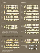 picking a shade for dentures - Dental.